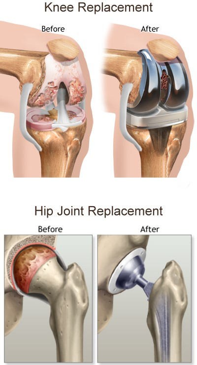 Joint Replacement Washington Circle Orthopaedic Associates